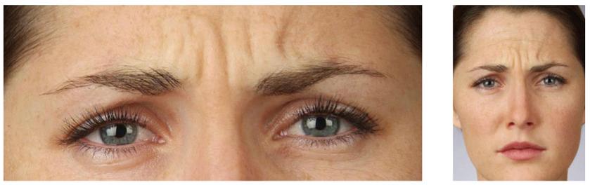 фото после разглаживания морщин на лице