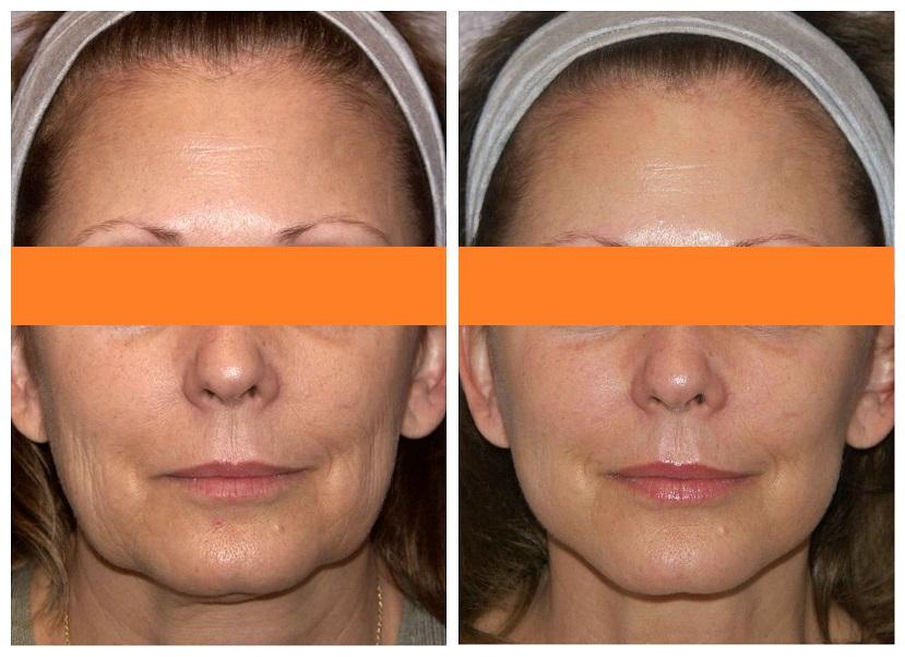 мезонити для лица: фото до и после процедуры