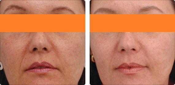 Фотография до и после процедуры фотоомоложения