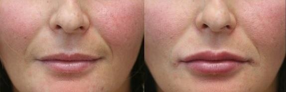 фото до и после контурной платики лица