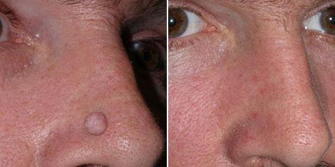 удаление фибромы: фото до и после процедуры