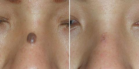Фиброма на носу удаление 34