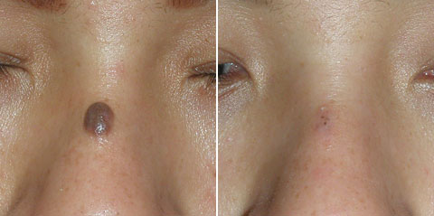фиброма на носу: фото до и после