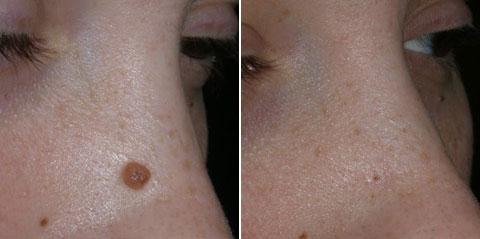 Фиброма на носу удаление 35