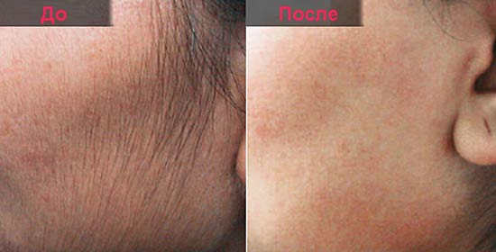 фотография до и после удаления нежелательных волос на лице