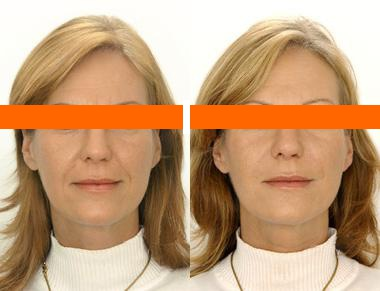 фото мезотерапии лица до и после процедуры
