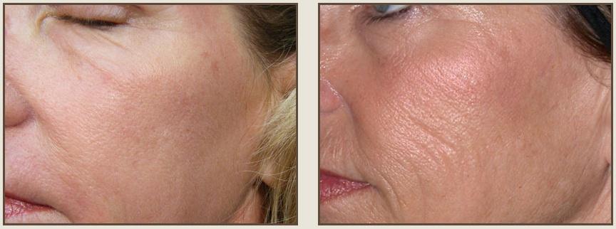 биоревитализация лица: фото до и после