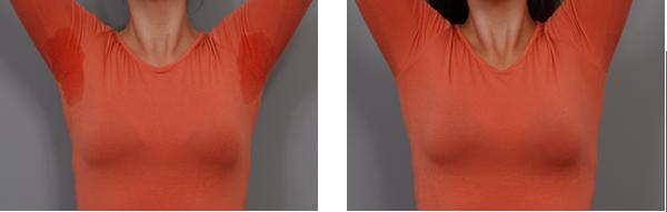 лечение гипергидроза подмышек фотографии до и после