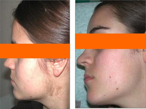 удаление волос на лице: фото до и после