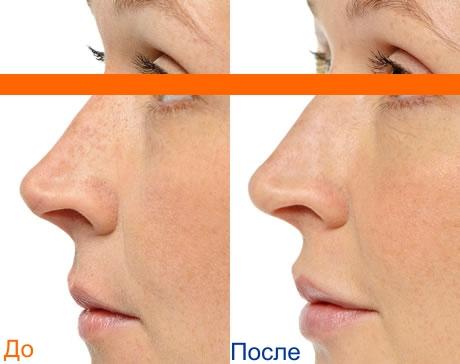 увеличение губ: фото до и после процедуры