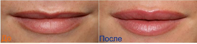 фото до и после увеличния объема губ