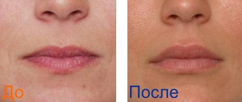 увеличение объема губ: фотографии до и после