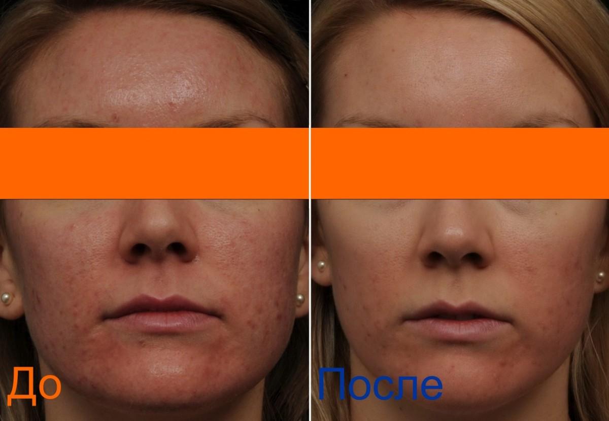фото до и после фракселя
