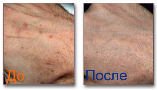фото до и после фракселя рук