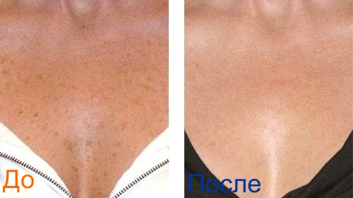 фото до и после фракционного фототермолиза: грудь