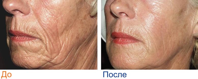 фраксель лицо: фото до и после
