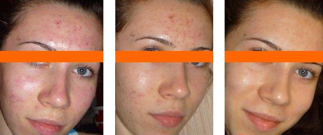 фото до и после лечения проблемной кожи