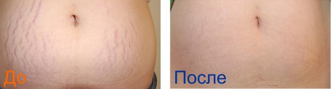удаление растяжек на животе фотография до и после процедуры