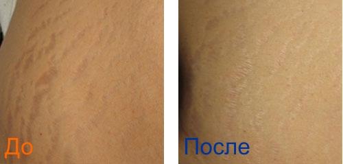 удаление растяжек на ногах: фото до и после просцедуры