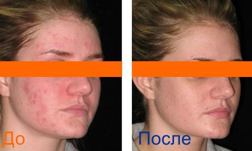 химический пилинг лица фотографии до и после