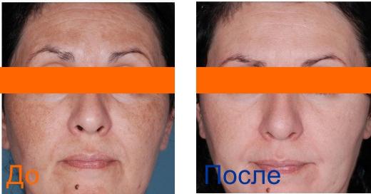 химический пилинг кожи - фото до и после 3х процедур