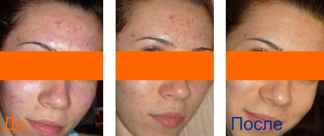 химический пилинг фото до после процедуры