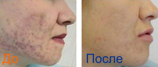 пилинг лица с фото до и после
