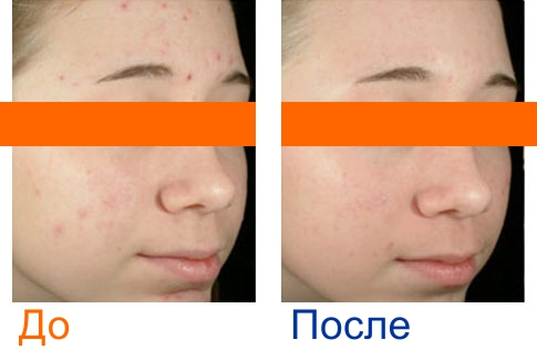 фото до и после ультразвуковой чистки кожи лица