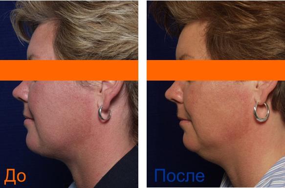чистка лица ультразвуком: фотографии до и после процедуры