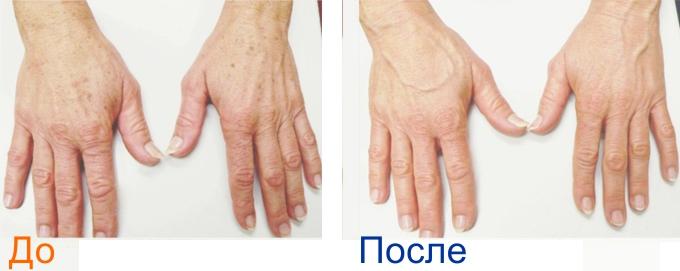 rf радиочастотный лифтинг рук фото до и после процедуры