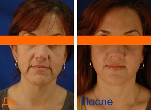 фото до и после процедуры мезонитей 3д