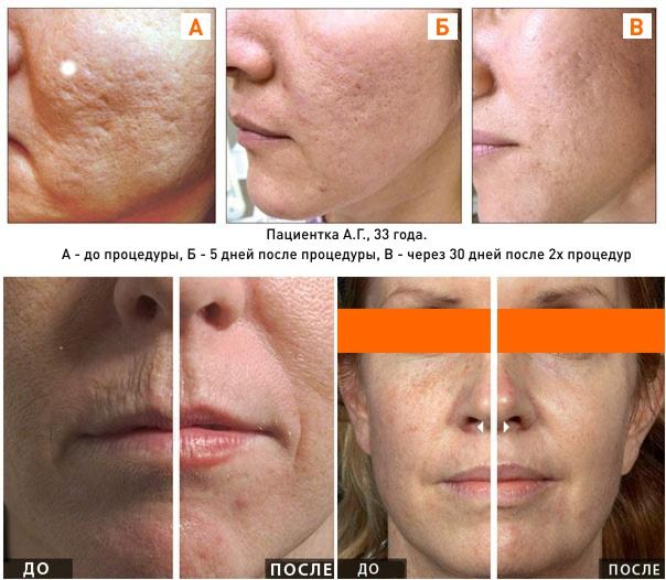 лазерная шлифовка лица: фото до и после процедуры