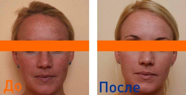 фото до и после лазерной шлифовки кожи лица