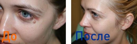 фото до и после удаления родинки на лице с помощью лазера