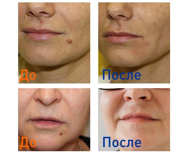 фото до и после удаления родинки на лице
