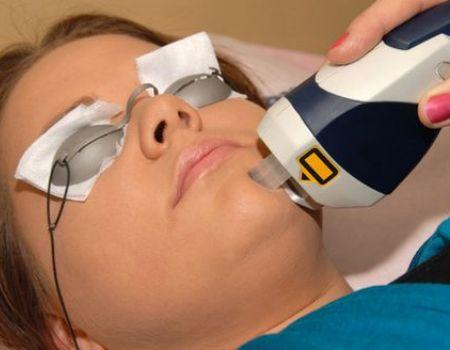 фотография аппарата для лазерной шлифовки шрамов