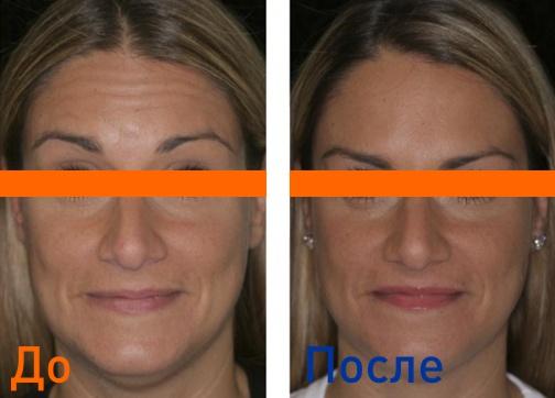 уколы красоты Диспортом: фото до и после процедуры