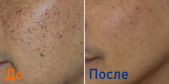 фото до и после удаления веснушек на лице