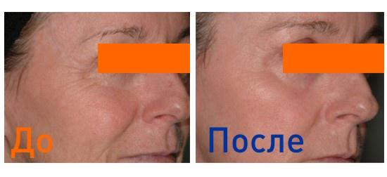 лазерная шлифовка нижнего века: фото до и после процедур