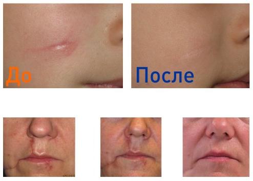 лазерная шлифовка рубцов: фото до и после процедуры