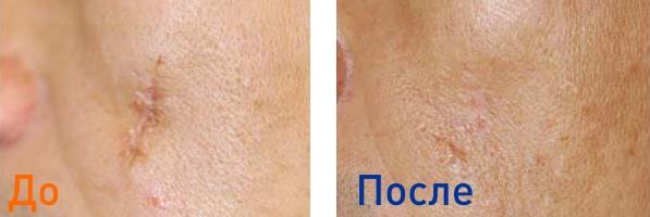 фото до и после 3х процедур лазерной шлифовки рубцов