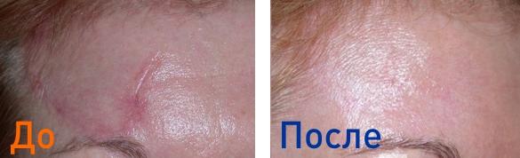 фото до и после процедуры лазерной шлифовки шрамов
