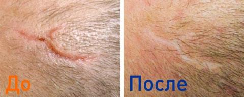 фото пациентки до и после лазерной шлифовки лазера