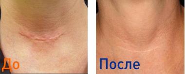 лазерная шлифовка шрамов: фото до и после удаления