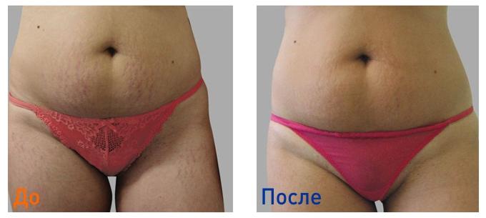 удаление растяжек: фото до и после лазерной шлифовки