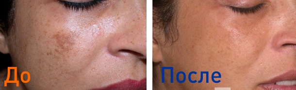 лазерная фракционная шлифовка: фото до и после 2х процедур