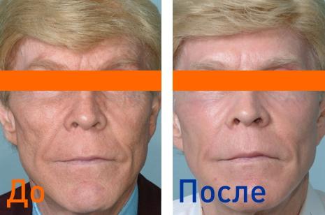 фракционная лазерная шлифовка фото до и после