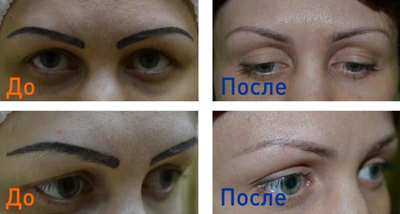 сведение перманентного макияжа
