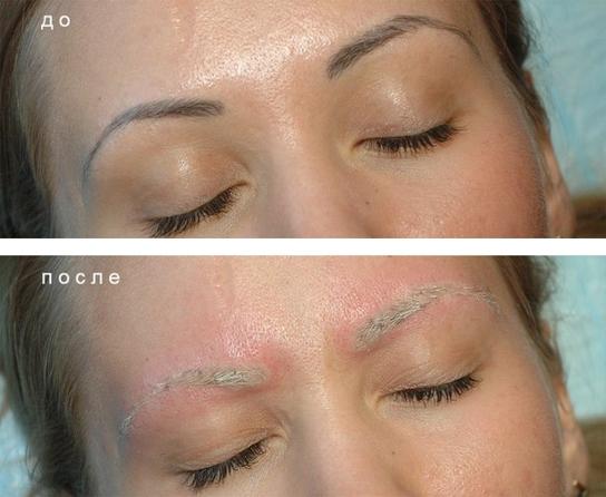 фото после удаления перманентного макияжа бровей