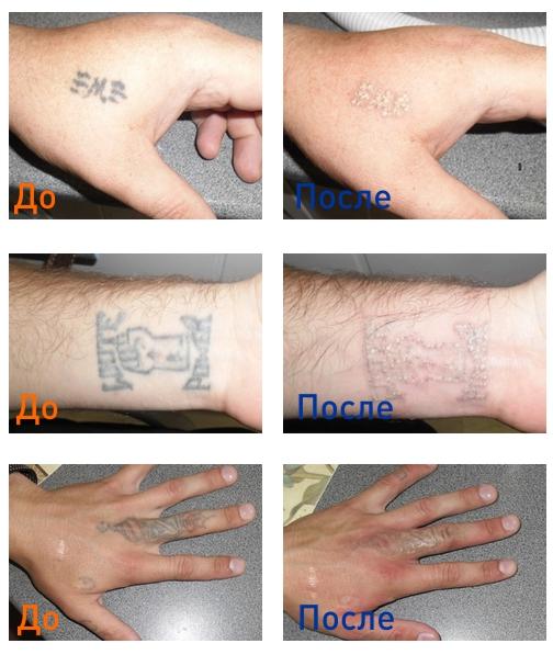выведение татуировки: фото до и после процедуры